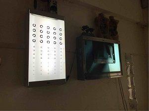 アナムネ店内には視力検査で使うボードも